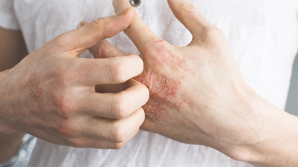 Eczema ke baare mein jaaniye