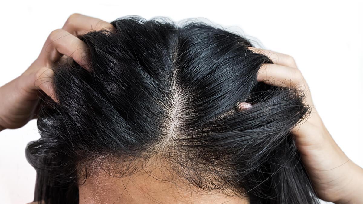 तैलीय और चिपचिपे बाल