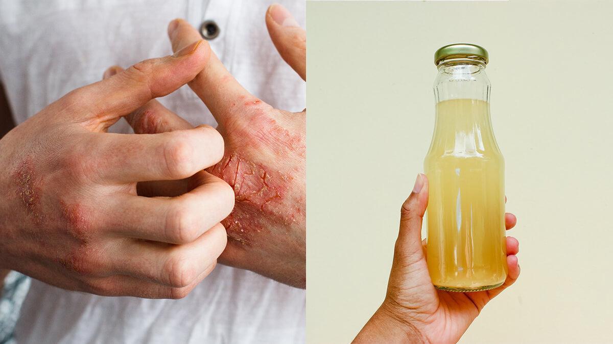 Eczema ke liye kaise karein apple cider vinegar ka istemal in hindi