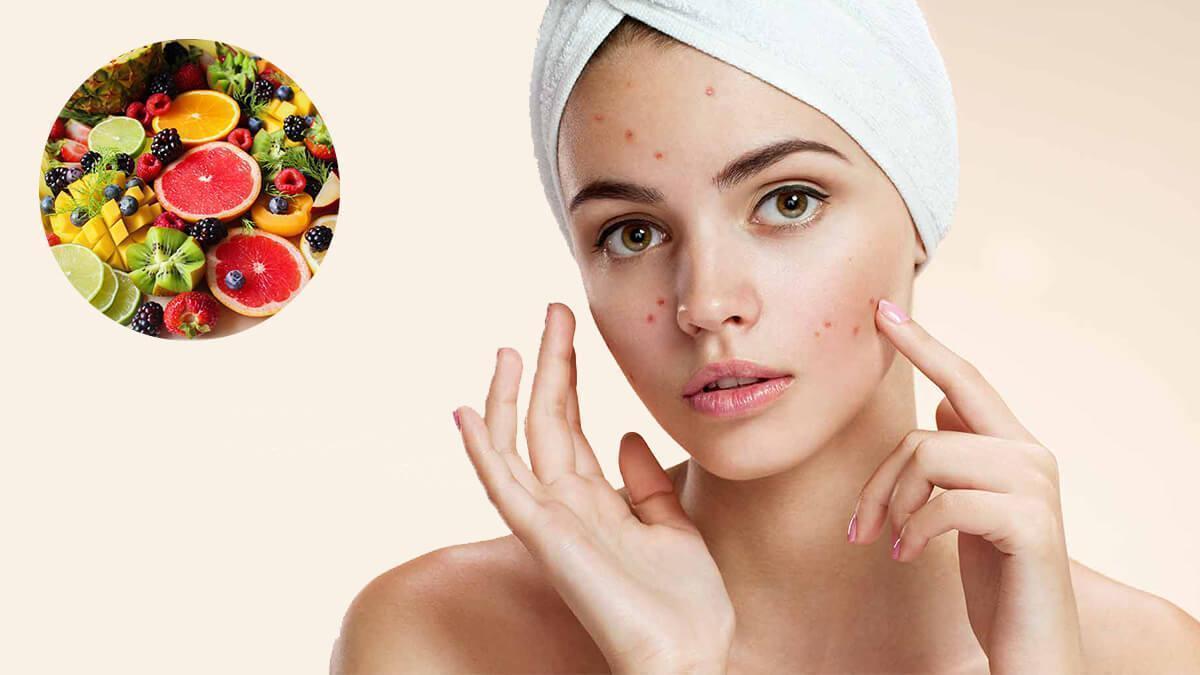 Anti acne diet in hindi