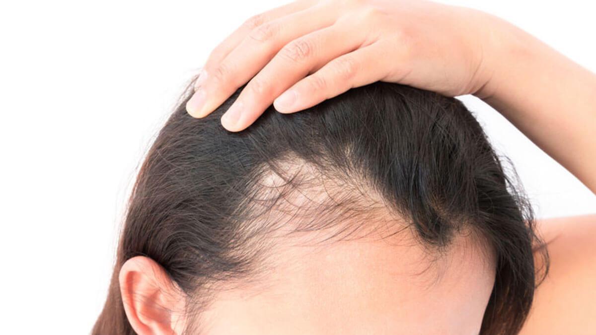 Stem cell hair transplant: yah kya hai aur yah kab uplabdh hoga