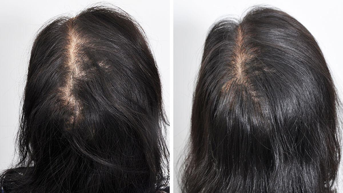Hair transplant permanent or temporary?