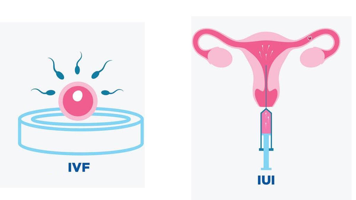 IVF aur IUI ke beech antar | Zealthy
