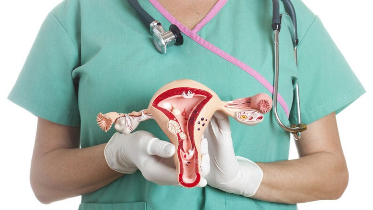 Uterine Fibroids and its treatment