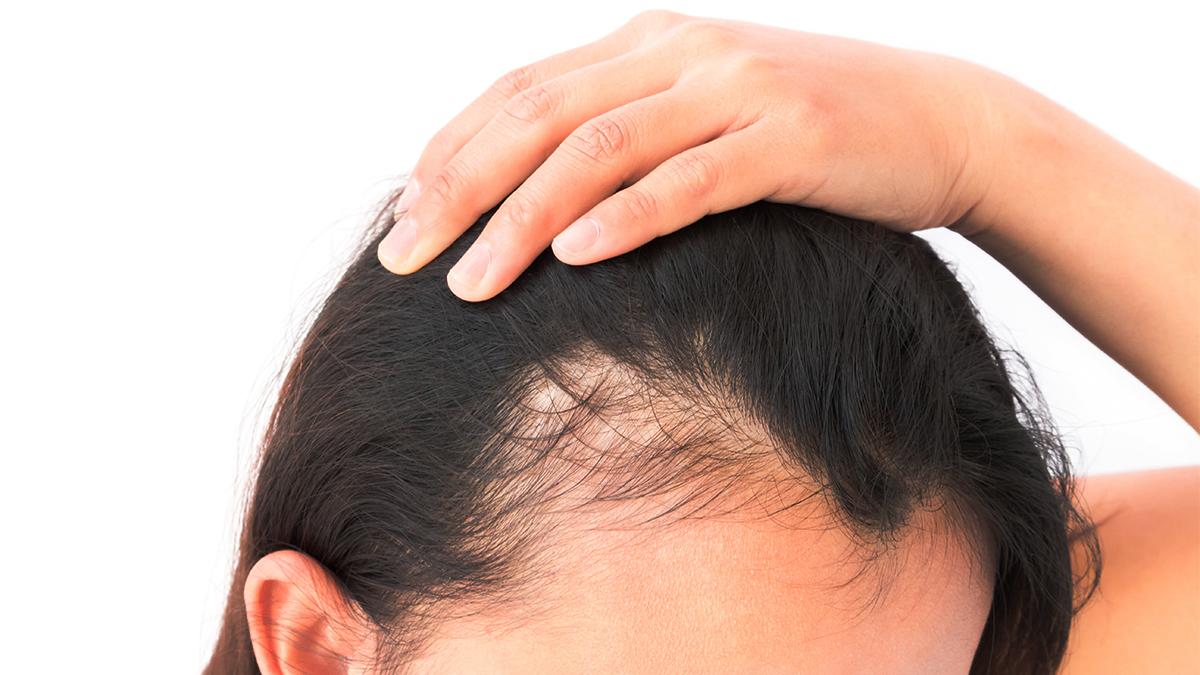 Pattern hair loss in hindi