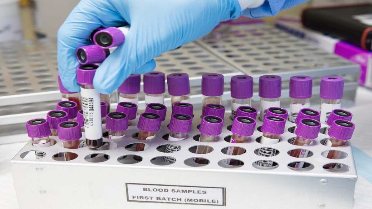 Importance of Testosterone Hormone Test in Fertility