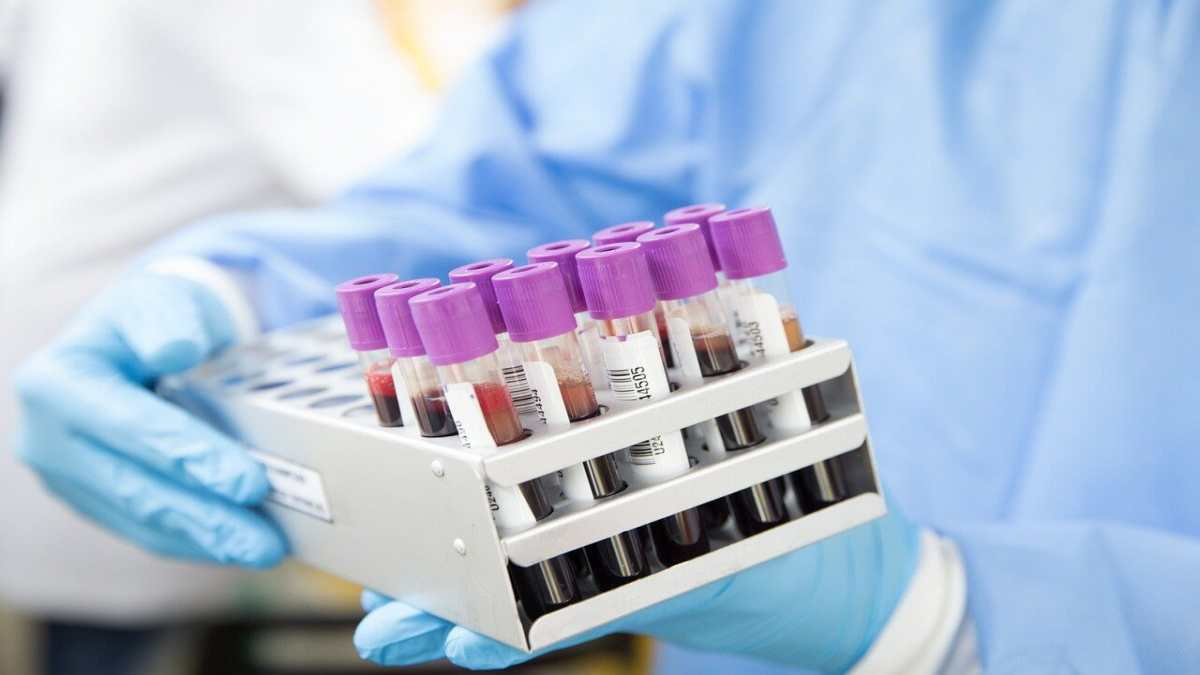 Progesterone test and its importance in the female fertility